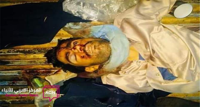 صورة شقيق رئيس الوزراء مقتولا بجبهة الضالع