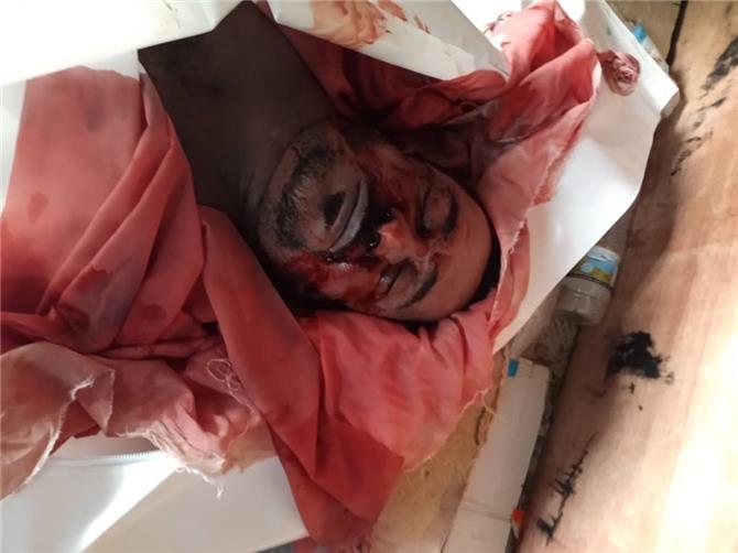 مقتل مواطنين جراء التعذيب في معسكر النقل بدار سعد