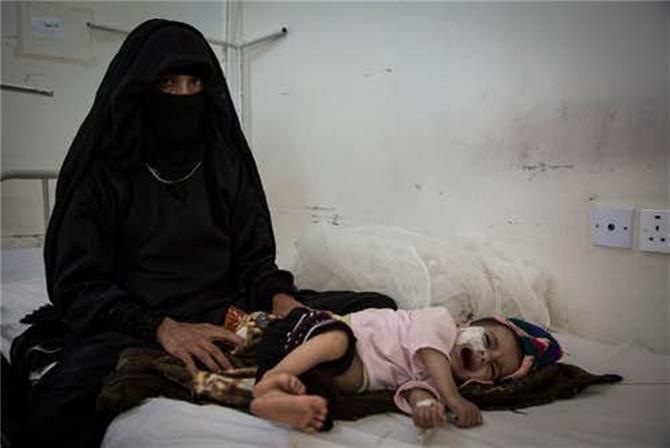 تسجيل 500 حالة اشتباه بهذا الوباء في صنعاء