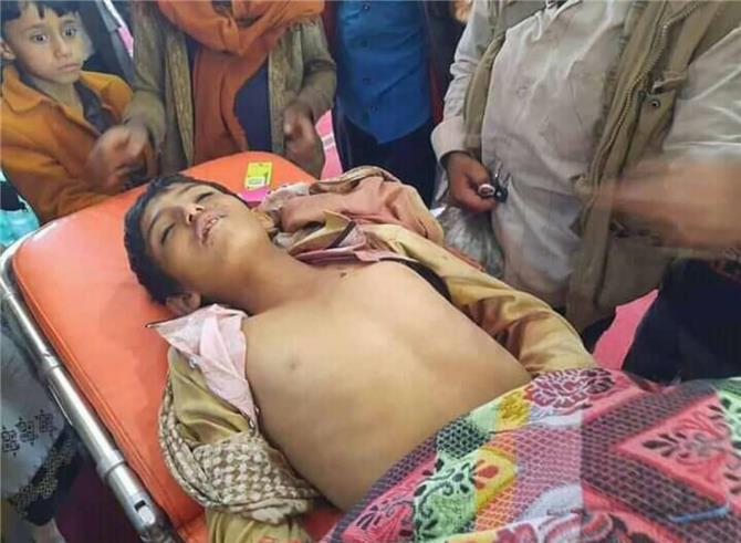 مقتل طفل برصاص قناص حوثي بمريس شمال الضالع