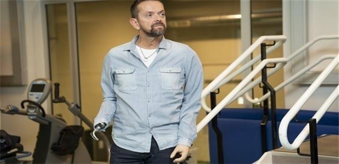 أيسلندي أول مريض يخضع لعملية زراعة كتفين في العالم