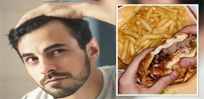 5 أطعمة تجنبها لإيقاف تساقط شعرك